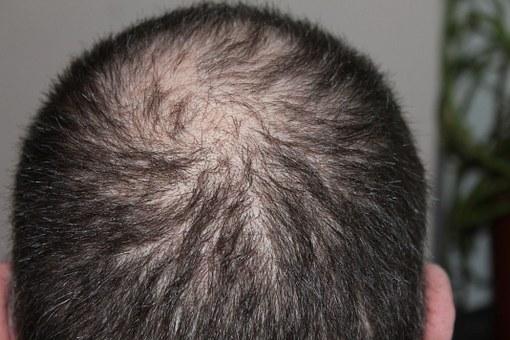 wypadanie włosów leczenie